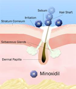 Миноксидил 2